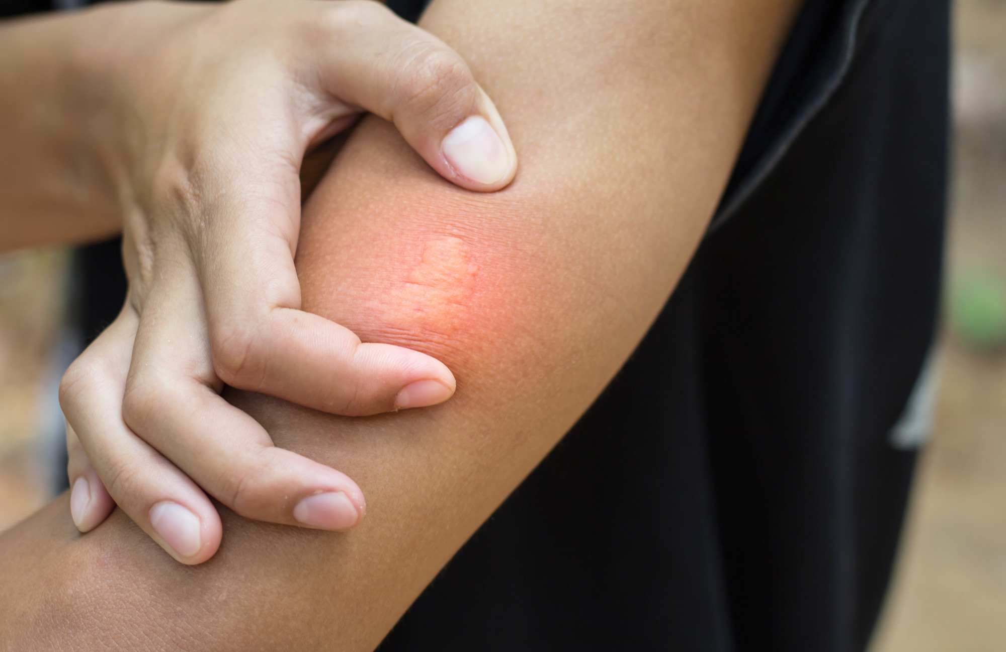 What to Do if You or a Loved One Is Experiencing an Allergic Reaction