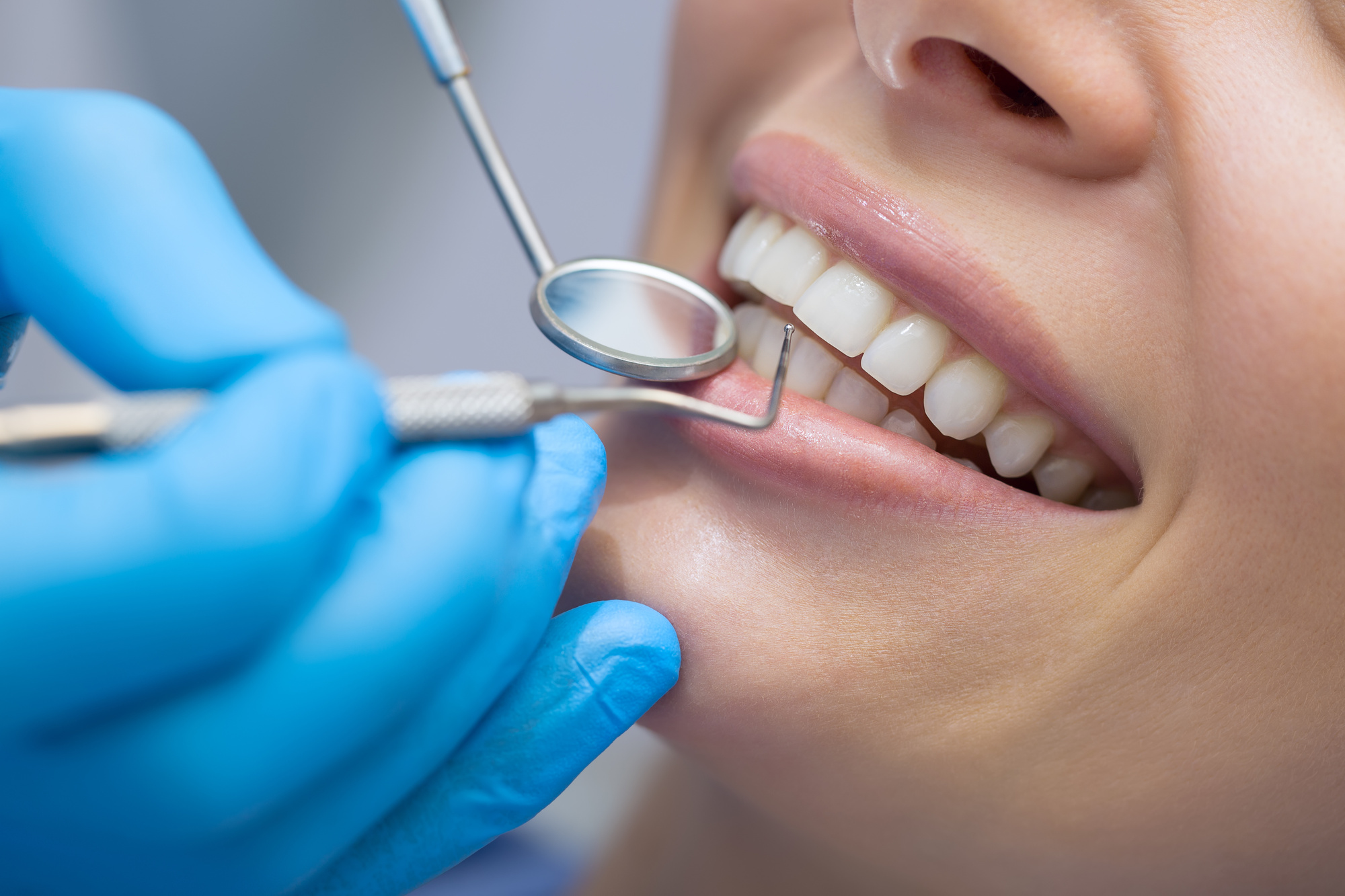 5 Factors to Consider When Choosing Cosmetic Dentist Specialists