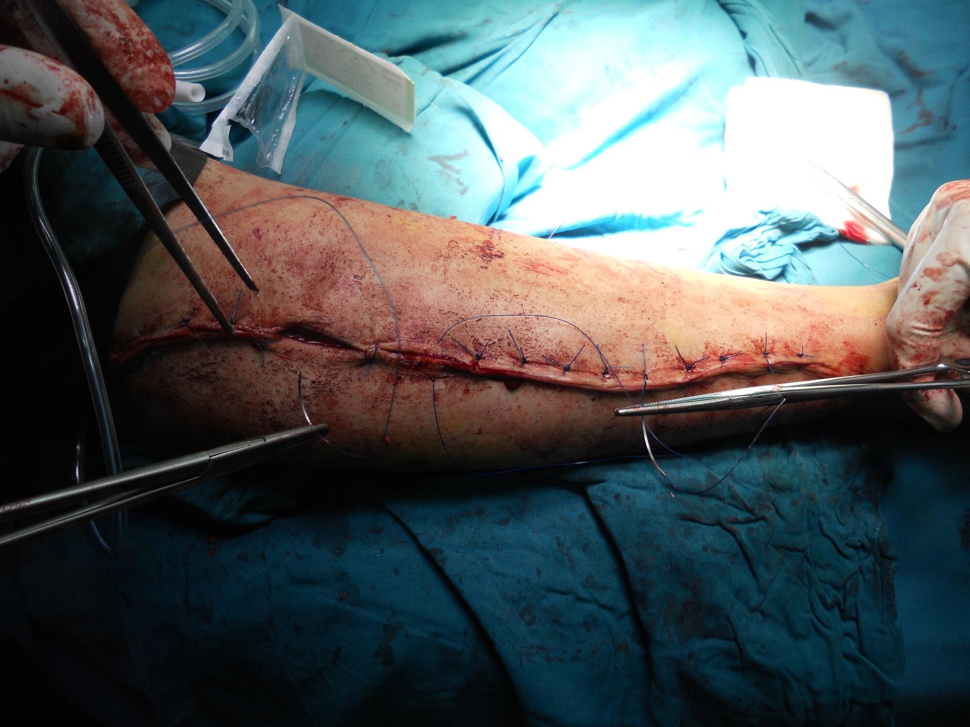 Top 5 Factors to Consider When Choosing Orthopedic Surgeons