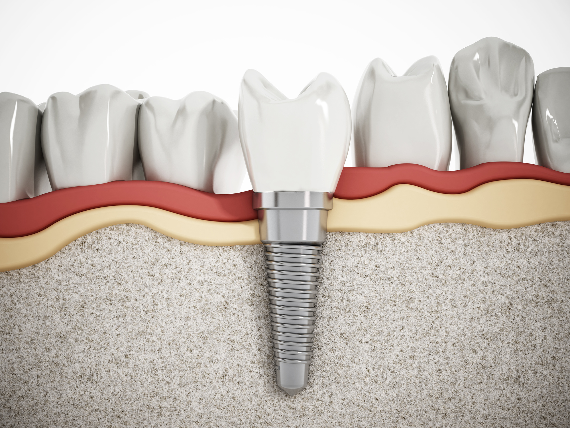 The Advantages of Getting a Single Tooth Implant